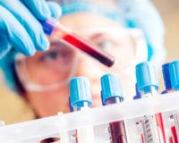 Analiza krvi – evo zašto je važno da je radite dva puta godišnje!